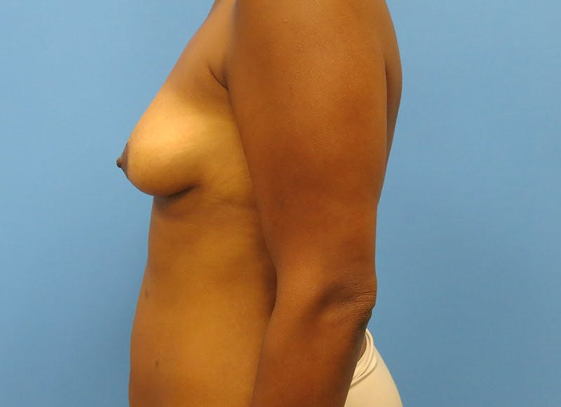 Breast Reconstruction - Flap Gallery - Patient 3831104 - Image 9