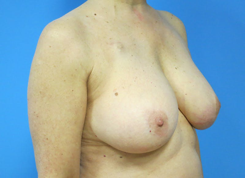 Breast Reconstruction - Flap Gallery - Patient 3831105 - Image 7