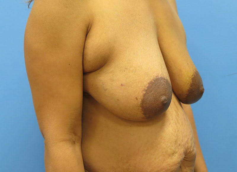 Breast Reconstruction - Flap Gallery - Patient 3831106 - Image 3