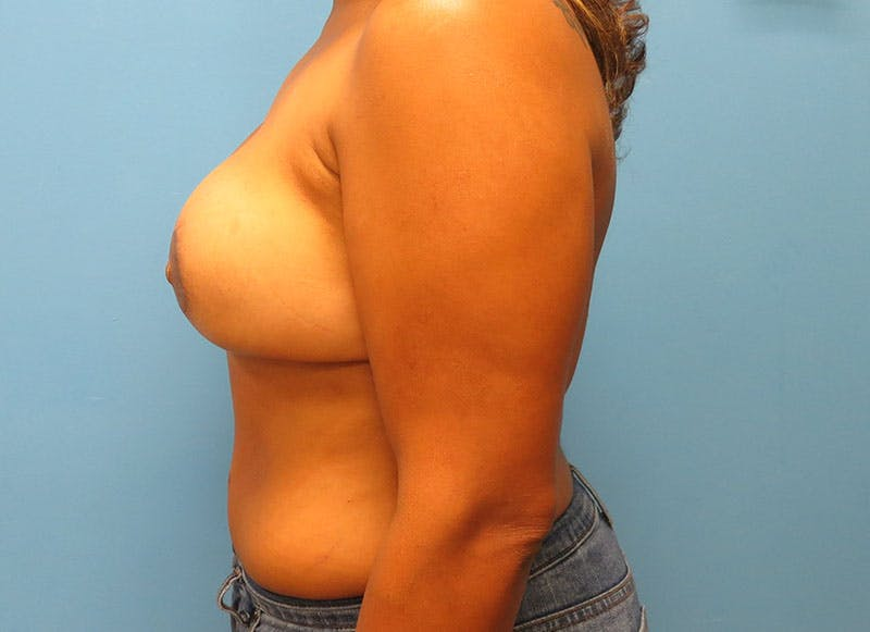 Breast Reconstruction - Flap Gallery - Patient 3831104 - Image 10