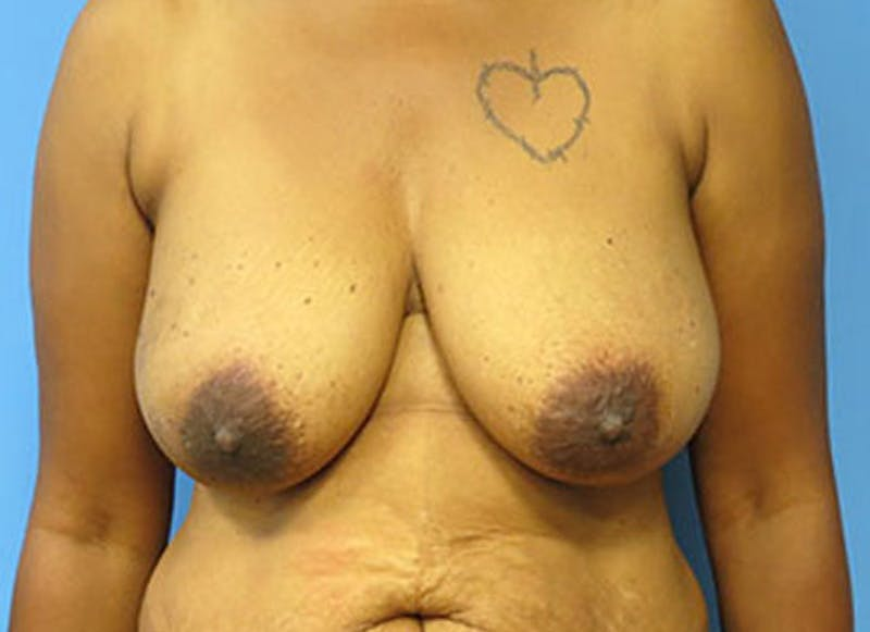Breast Reconstruction - Flap Gallery - Patient 3831107 - Image 1
