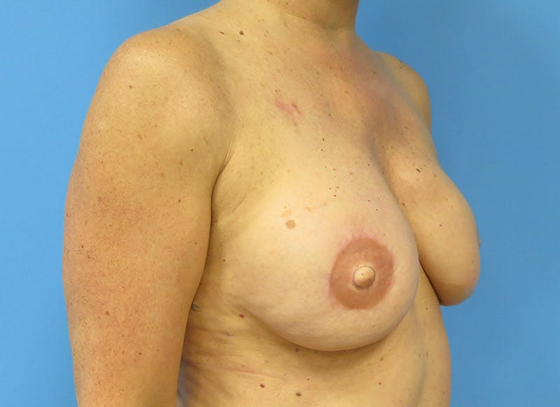 Breast Reconstruction - Flap Gallery - Patient 3831105 - Image 8
