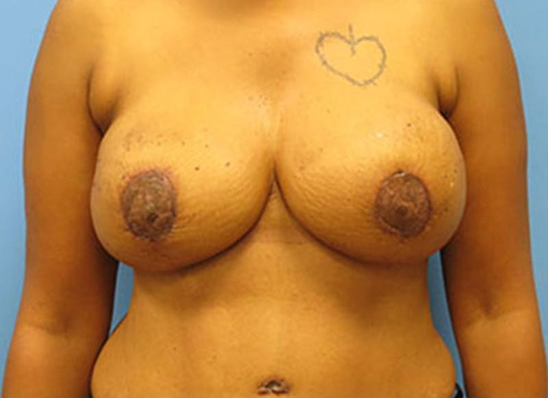 Breast Reconstruction - Flap Gallery - Patient 3831107 - Image 2