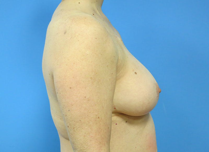 Breast Reconstruction - Flap Gallery - Patient 3831105 - Image 9