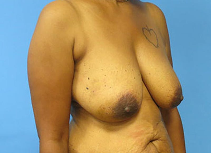 Breast Reconstruction - Flap Gallery - Patient 3831107 - Image 3