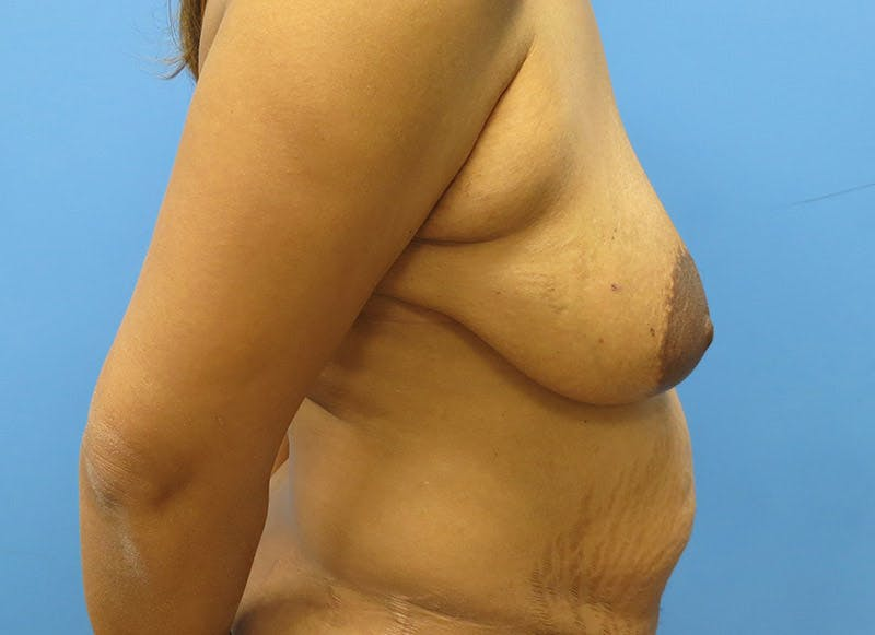 Breast Reconstruction - Flap Gallery - Patient 3831106 - Image 5