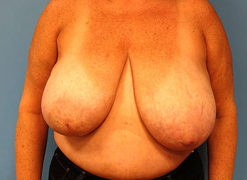 Breast Reconstruction - Flap Gallery - Patient 3831108 - Image 1