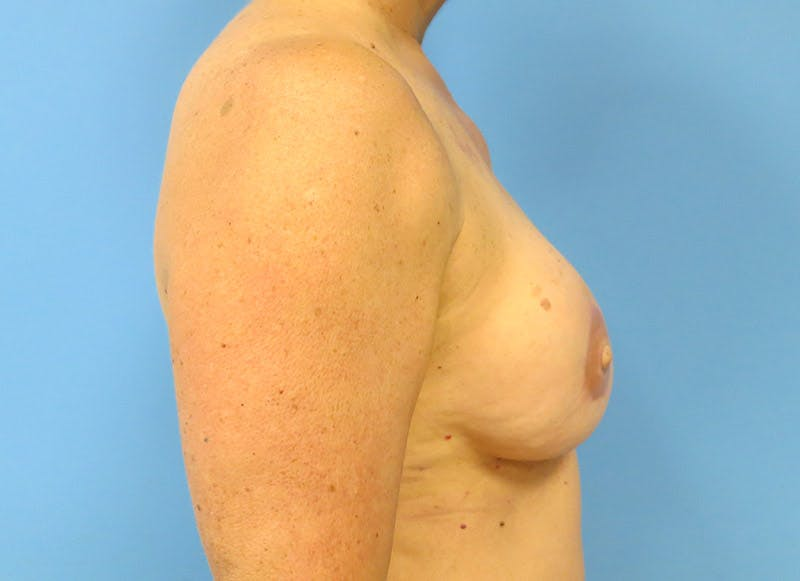 Breast Reconstruction - Flap Gallery - Patient 3831105 - Image 10
