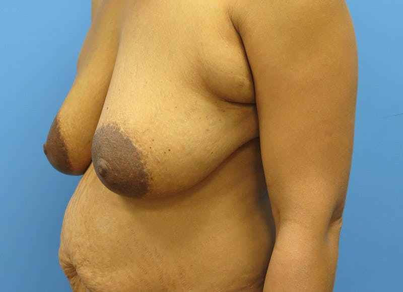 Breast Reconstruction - Flap Gallery - Patient 3831106 - Image 7