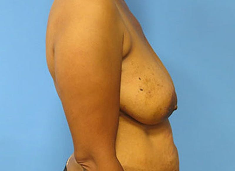 Breast Reconstruction - Flap Gallery - Patient 3831107 - Image 5