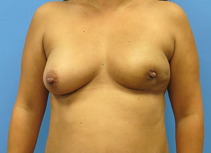 Breast Reconstruction - Flap Gallery - Patient 3831109 - Image 1