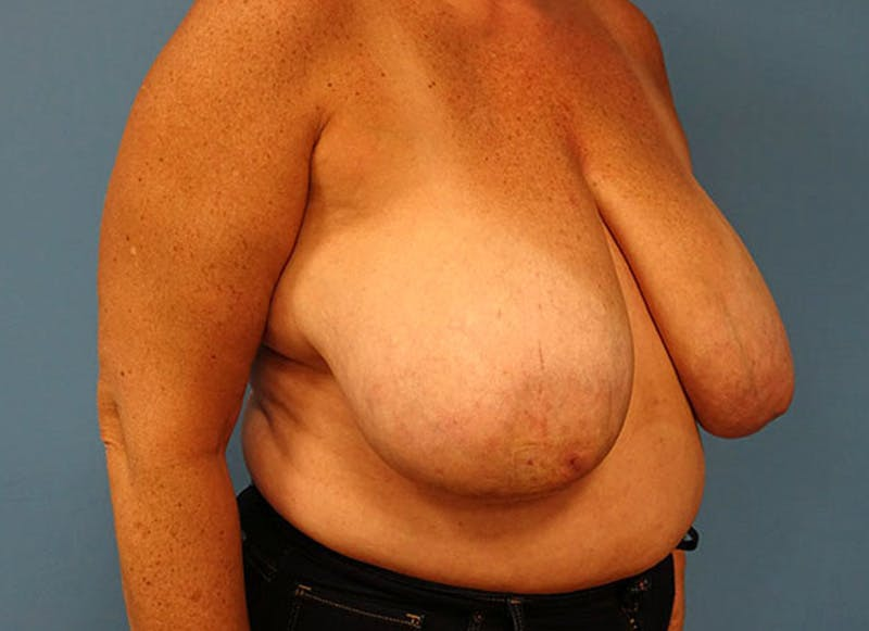 Breast Reconstruction - Flap Gallery - Patient 3831108 - Image 3