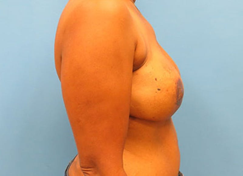 Breast Reconstruction - Flap Gallery - Patient 3831107 - Image 6