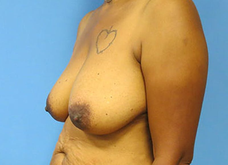 Breast Reconstruction - Flap Gallery - Patient 3831107 - Image 7