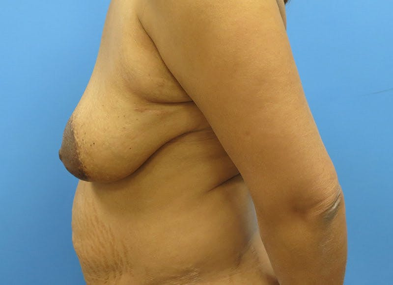 Breast Reconstruction - Flap Gallery - Patient 3831106 - Image 9