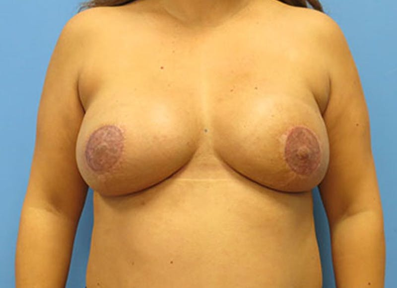 Breast Reconstruction - Flap Gallery - Patient 3831109 - Image 2