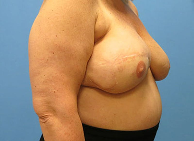 Breast Reconstruction - Flap Gallery - Patient 3831108 - Image 4