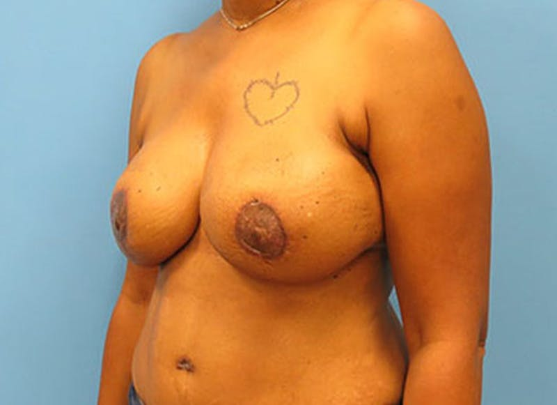 Breast Reconstruction - Flap Gallery - Patient 3831107 - Image 8