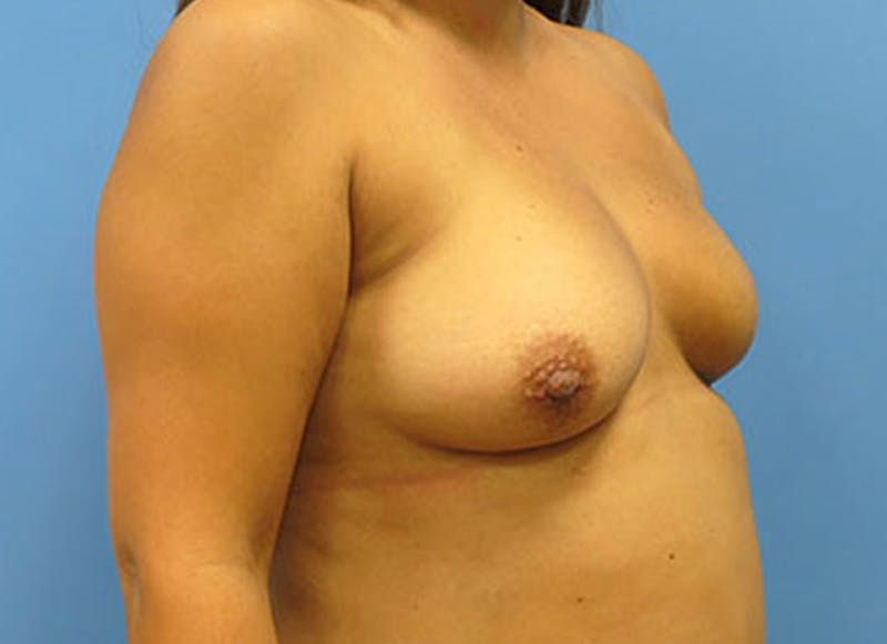 Breast Reconstruction - Flap Gallery - Patient 3831109 - Image 3