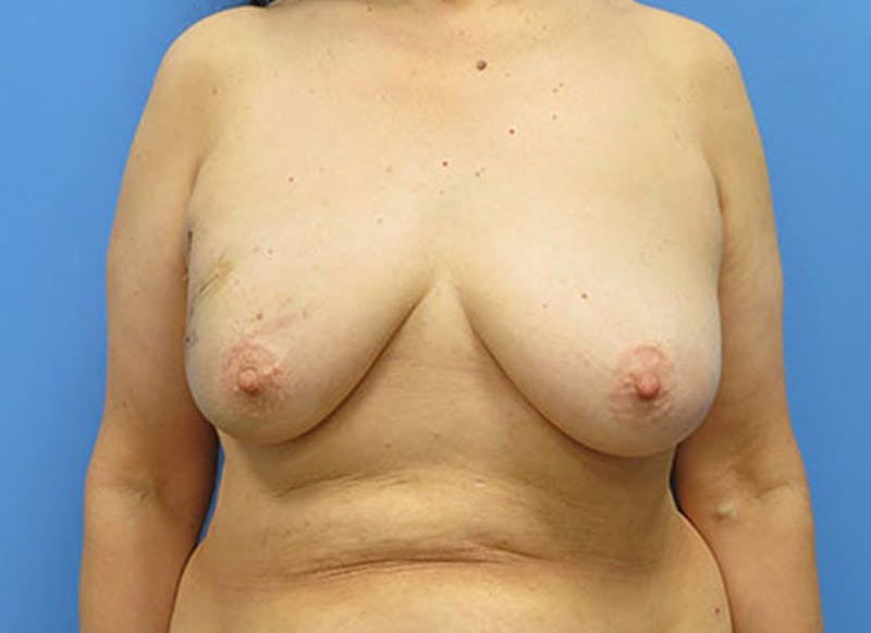 Breast Reconstruction - Flap Gallery - Patient 3831110 - Image 1