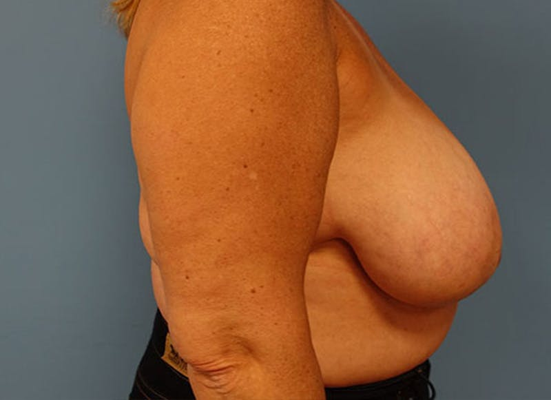 Breast Reconstruction - Flap Gallery - Patient 3831108 - Image 5