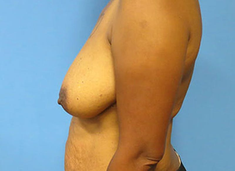 Breast Reconstruction - Flap Gallery - Patient 3831107 - Image 9