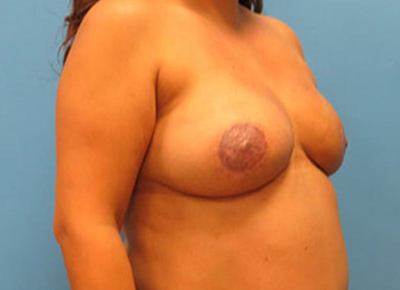 Breast Reconstruction - Flap Gallery - Patient 3831109 - Image 4
