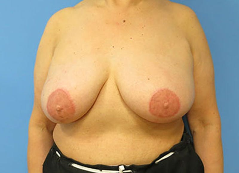 Breast Reconstruction - Flap Gallery - Patient 3831110 - Image 2