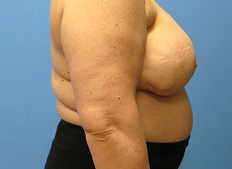 Breast Reconstruction - Flap Gallery - Patient 3831108 - Image 6