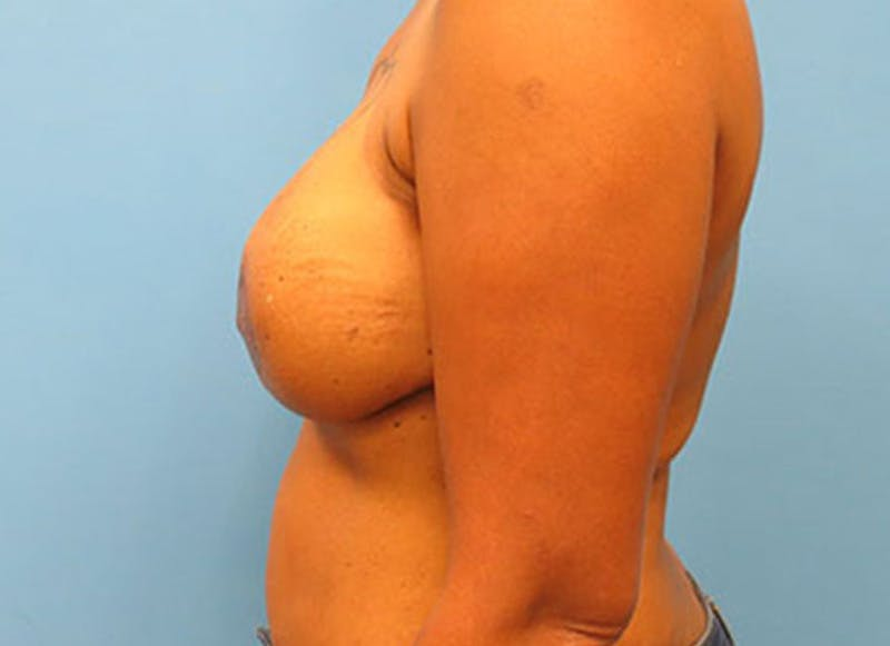 Breast Reconstruction - Flap Gallery - Patient 3831107 - Image 10