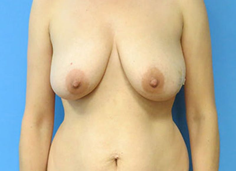 Breast Reconstruction - Flap Gallery - Patient 3831111 - Image 1