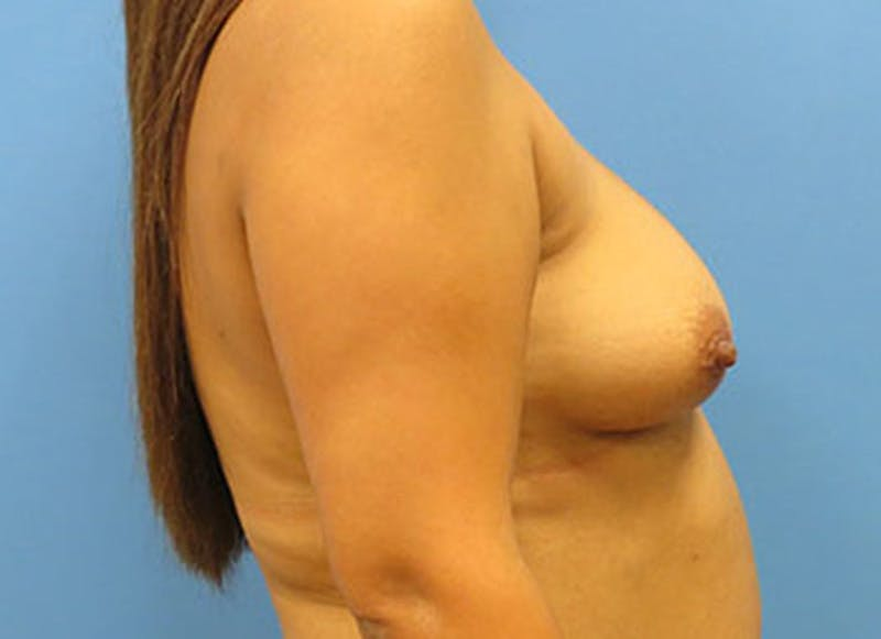 Breast Reconstruction - Flap Gallery - Patient 3831109 - Image 5