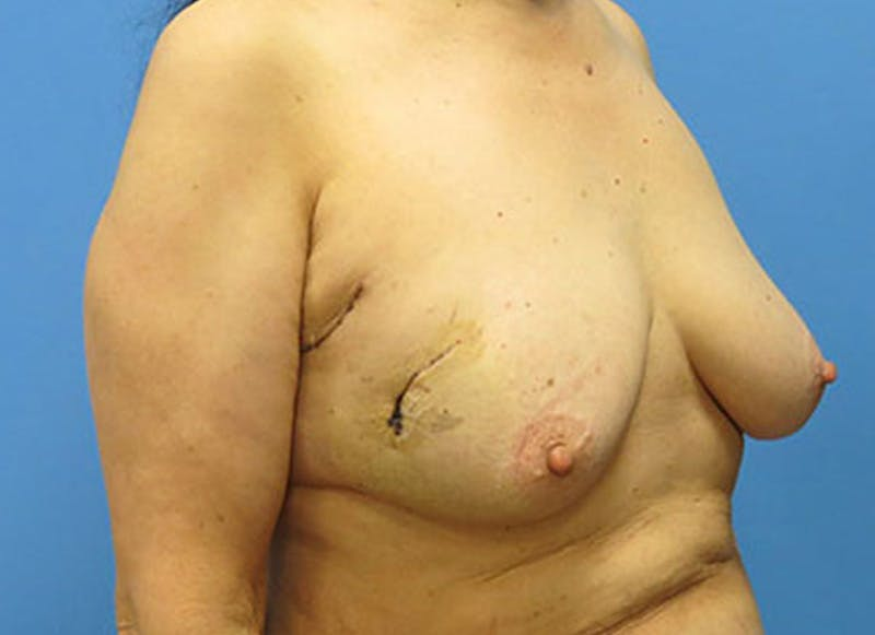 Breast Reconstruction - Flap Gallery - Patient 3831110 - Image 3