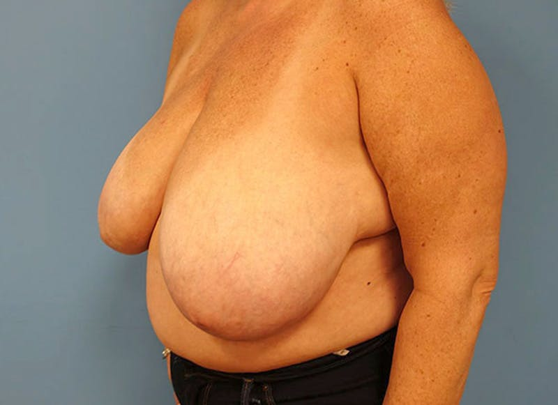 Breast Reconstruction - Flap Gallery - Patient 3831108 - Image 7