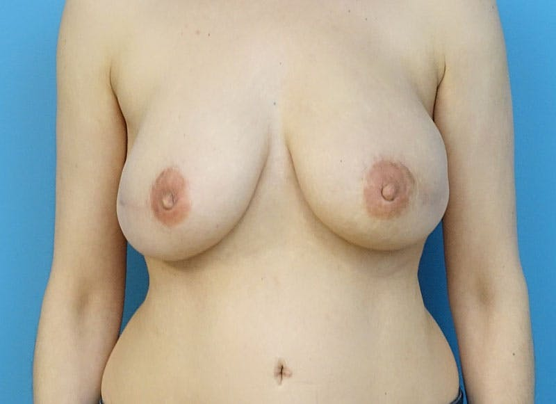 Breast Reconstruction - Flap Gallery - Patient 3831111 - Image 2