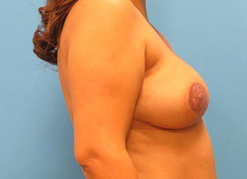 Breast Reconstruction - Flap Gallery - Patient 3831109 - Image 6