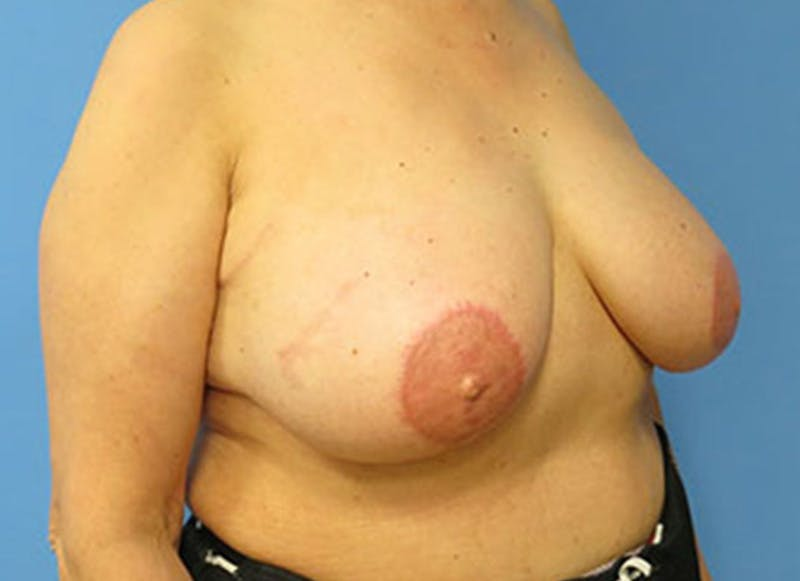 Breast Reconstruction - Flap Gallery - Patient 3831110 - Image 4