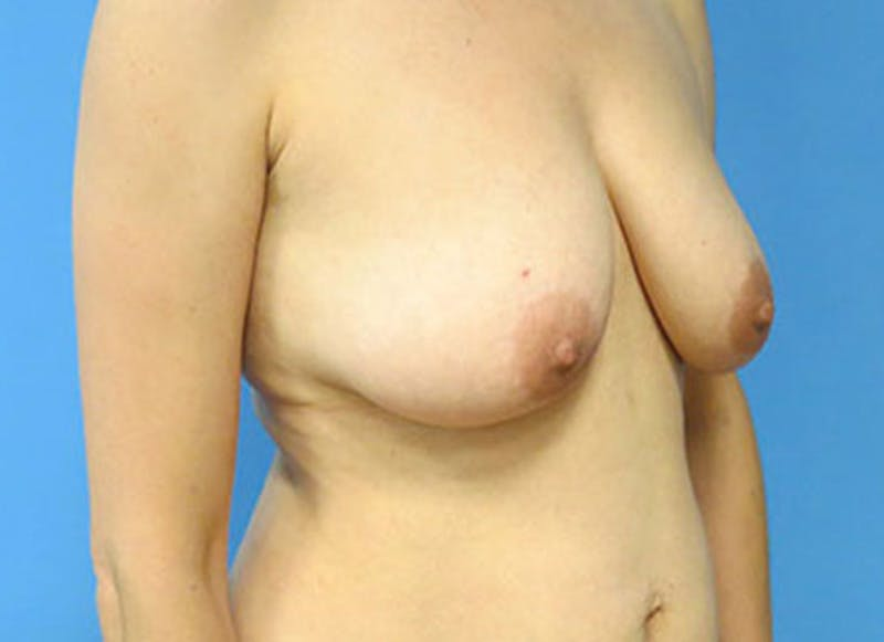 Breast Reconstruction - Flap Gallery - Patient 3831111 - Image 3