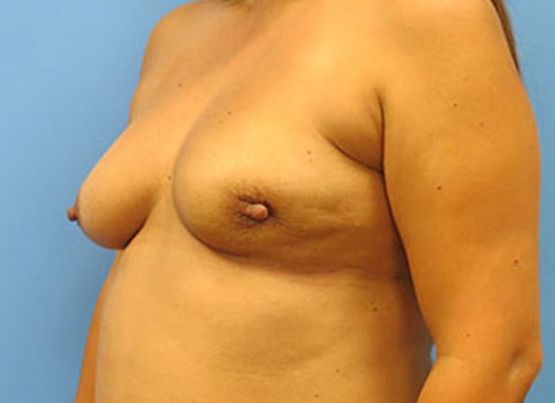 Breast Reconstruction - Flap Gallery - Patient 3831109 - Image 7