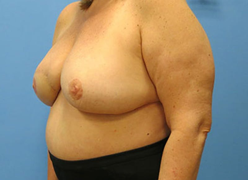 Breast Reconstruction - Flap Gallery - Patient 3831108 - Image 8