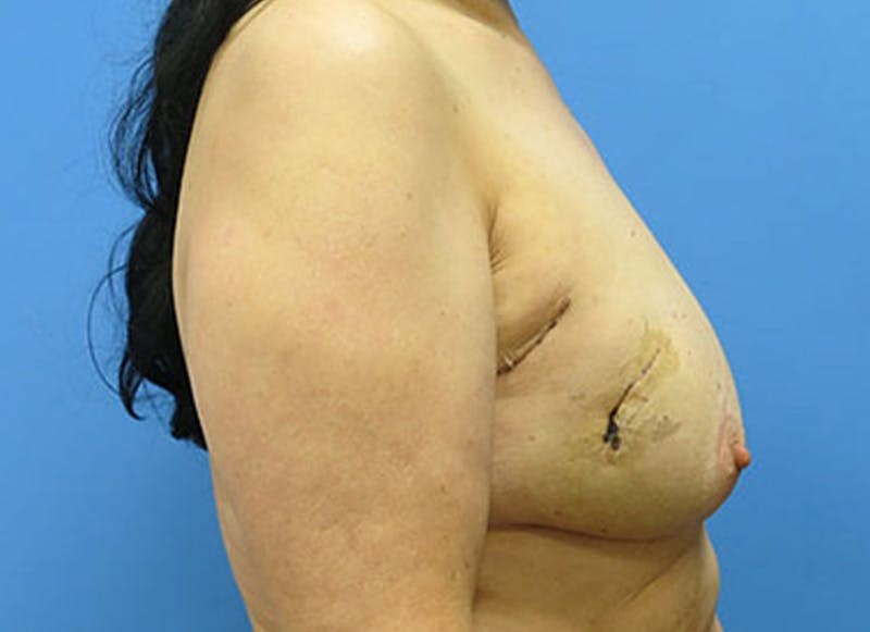 Breast Reconstruction - Flap Gallery - Patient 3831110 - Image 5