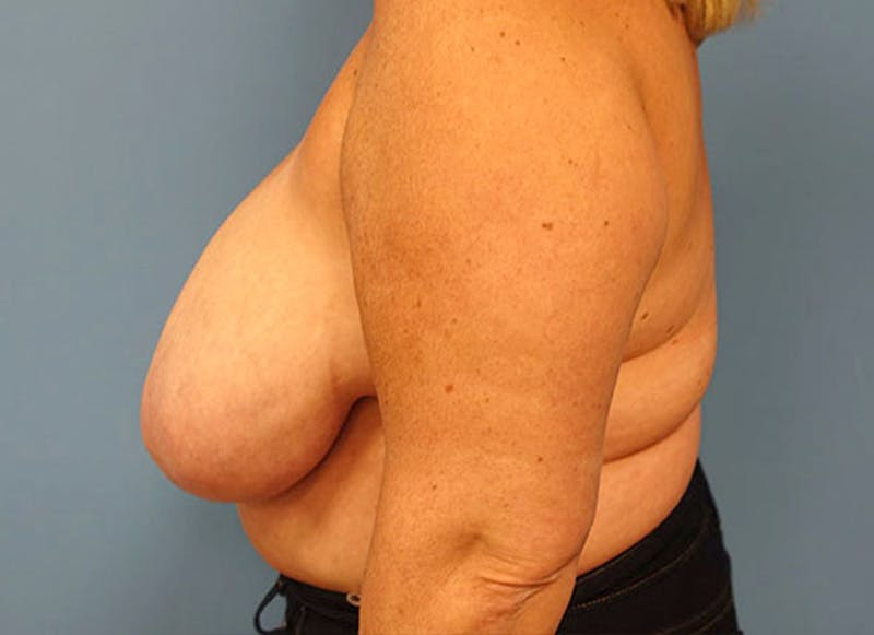 Breast Reconstruction - Flap Gallery - Patient 3831108 - Image 9
