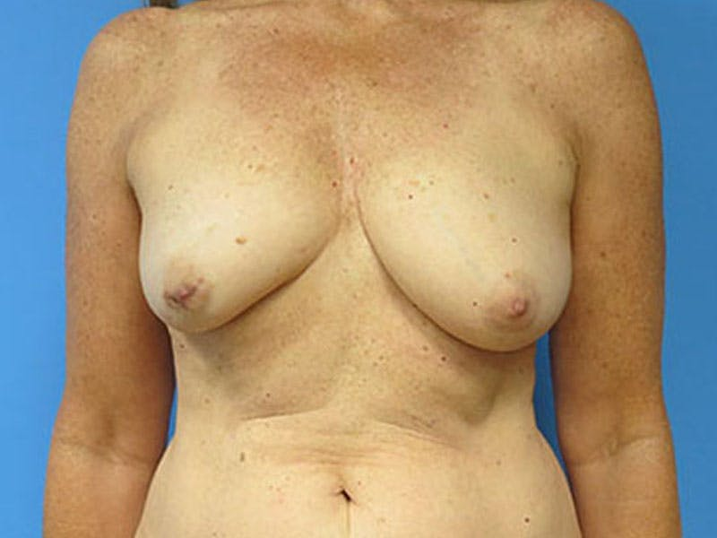Breast Reconstruction - Flap Gallery - Patient 3831112 - Image 1