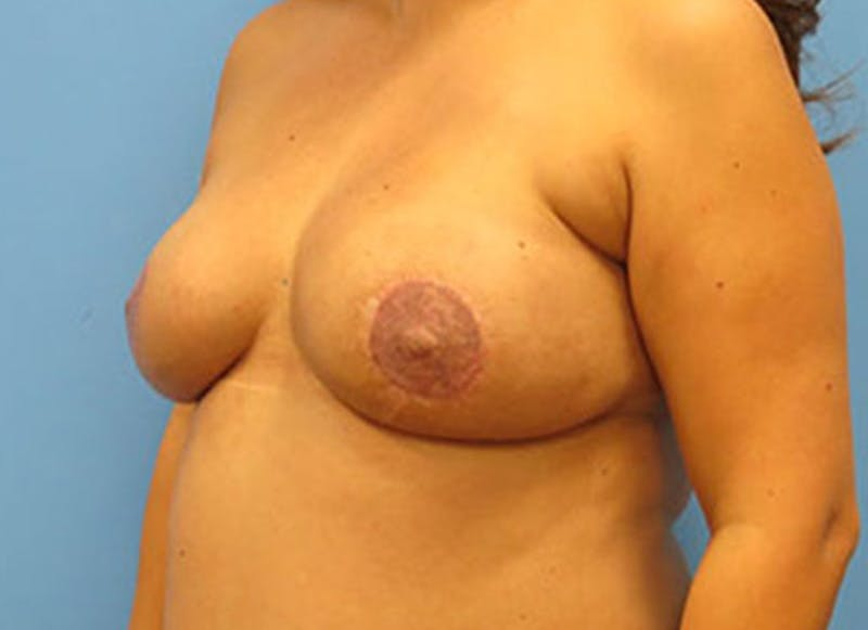 Breast Reconstruction - Flap Gallery - Patient 3831109 - Image 8