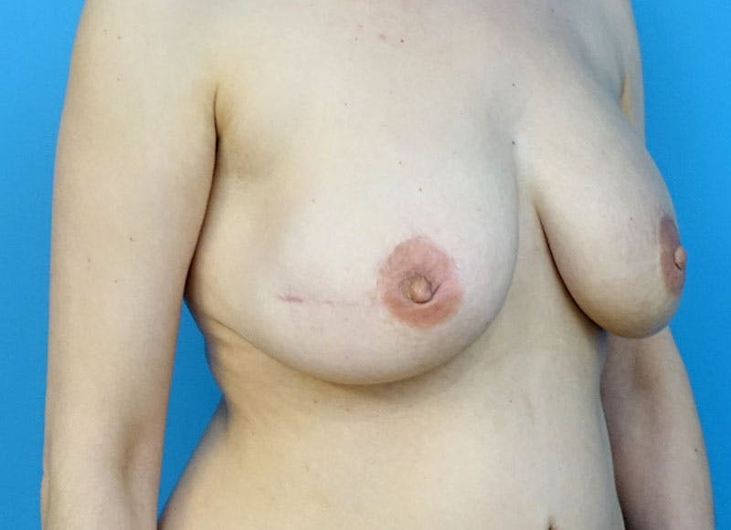 Breast Reconstruction - Flap Gallery - Patient 3831111 - Image 4