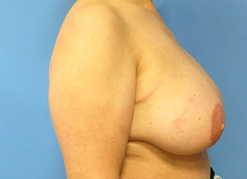 Breast Reconstruction - Flap Gallery - Patient 3831110 - Image 6