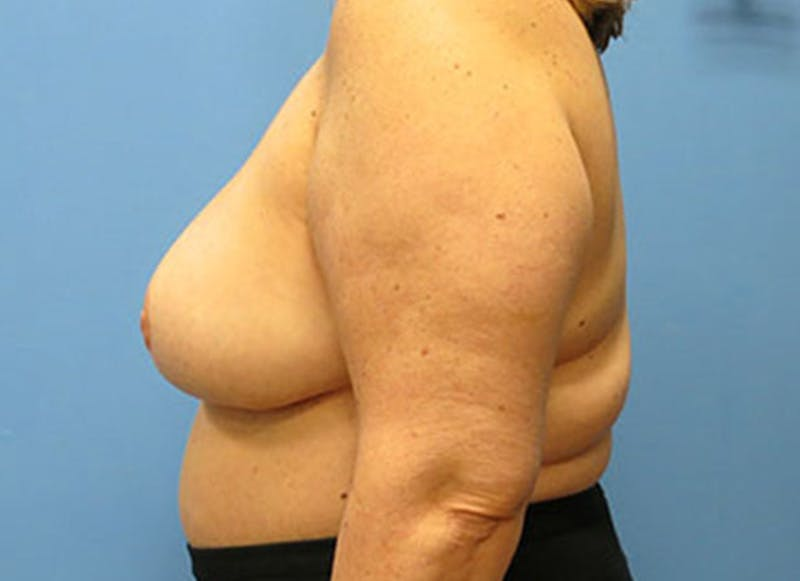 Breast Reconstruction - Flap Gallery - Patient 3831108 - Image 10