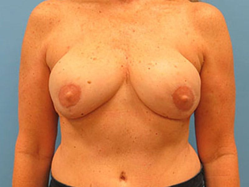 Breast Reconstruction - Flap Gallery - Patient 3831112 - Image 2