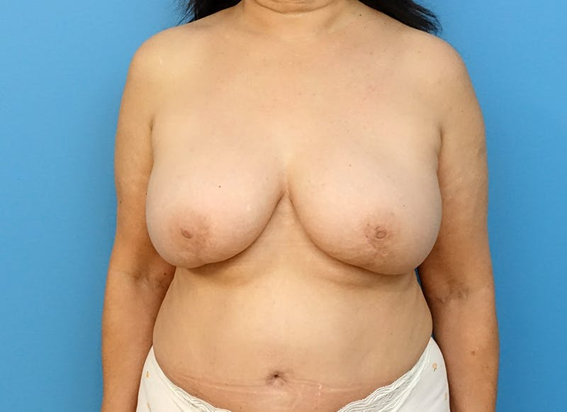 Breast Reconstruction - Flap Gallery - Patient 3831113 - Image 2