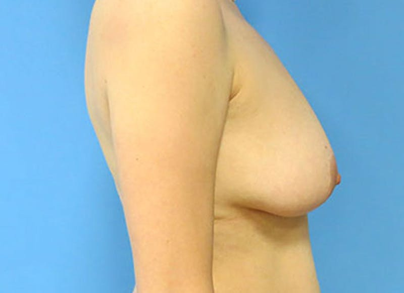 Breast Reconstruction - Flap Gallery - Patient 3831111 - Image 5